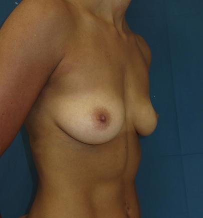 הגדלת חזה בשומן הגוף לפני אחרי